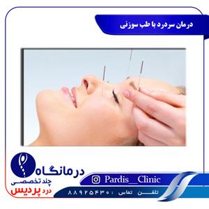 درمان سردرد با طب سوزنی