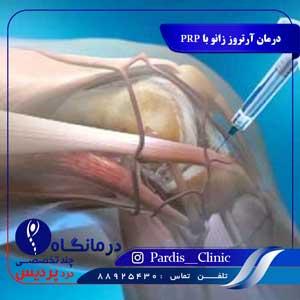 درمان آرتروز زانو با PRP